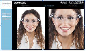 Digital Smile System
