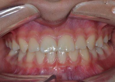 Ortodonzia intercettiva dopo