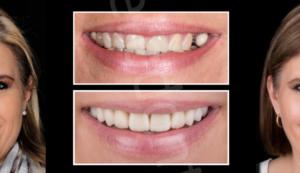 DIGITAL SMILE DESIGN SIMULATION
