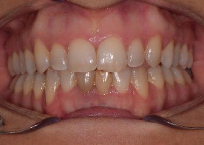 Ortodonzia invisibile dopo
