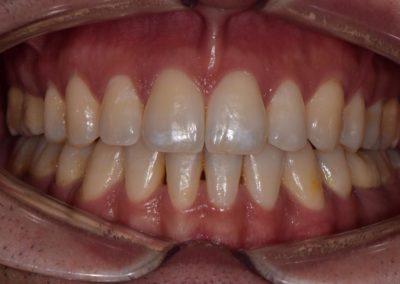 Ortodonzia tradizionale dopo